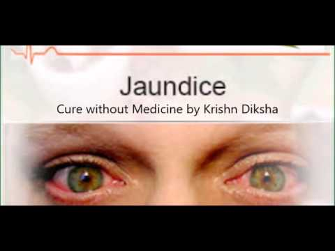 Cure Jaundice without Medicine by Krishn Diksha