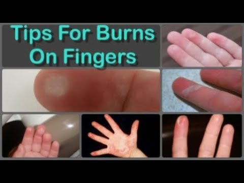 How To Cure Finger Burns And Home Remedies for Burns on Fingers Naturally