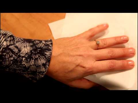 Removing a ring from an injured finger using an elastic band