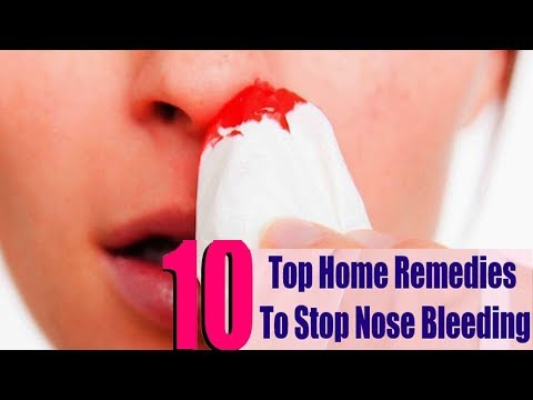 Nosebleed - How to Stop a Nosebleed Fast | 5 Ayurvedic Home Remedies  + Prevention |