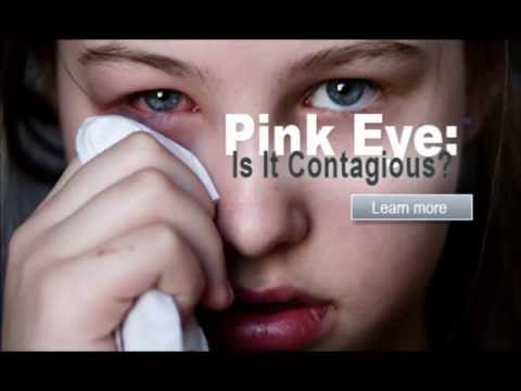 how to get rid of pink eye - conjunctivitis treatment | how to get rid of pink eye fast