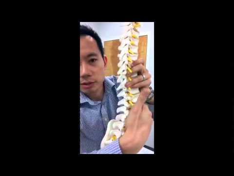 Low Back Pain - Pars Fracture