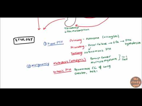 Hypercalcemia for USMLE Step 1 and USMLE Step 2