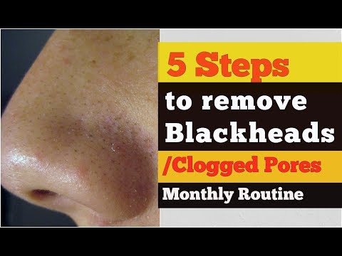 5 TRICKS TO UNCLOG PORES ON FACE AT HOME | BLACKHEADS/ WHITEHEADS REMOVAL MONTHLY ROUTINE in HINDI
