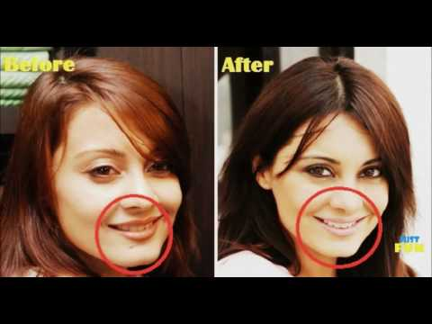 Bollywood Divas And Their Plastic Surgeries | Images Before and After |