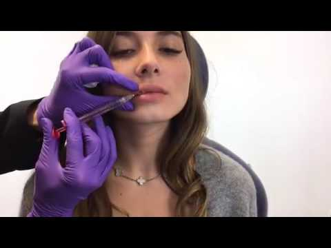 Volbella Injections for #SexyLips