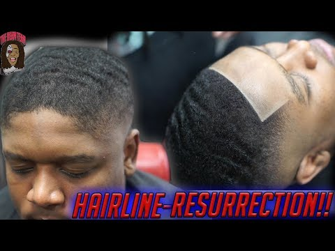 *MUST SEE*  HairLine Resurrection! HD