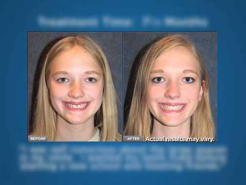 Why Should I Choose Invisalign®? - Bobak Orthodontics