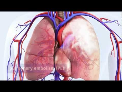 DVT can lead to pulmonary embolism (PE)