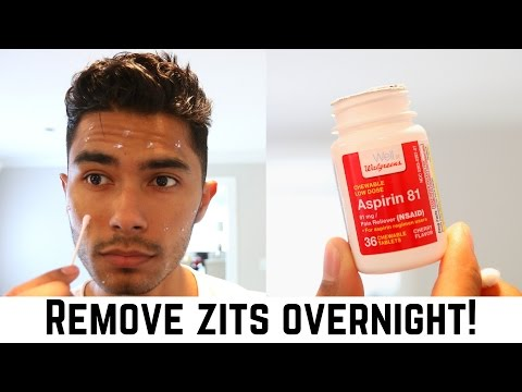 3 At-Home Hacks To Remove Zits Overnight!