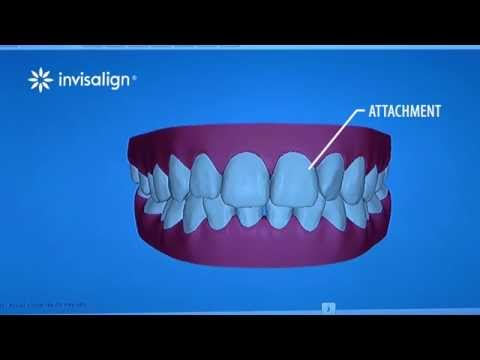 What You Can Expect During Invisalign Treatment
