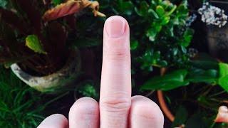 Umbilical Brothers: Finger War