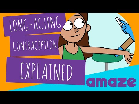 Long-Acting Contraception Explained