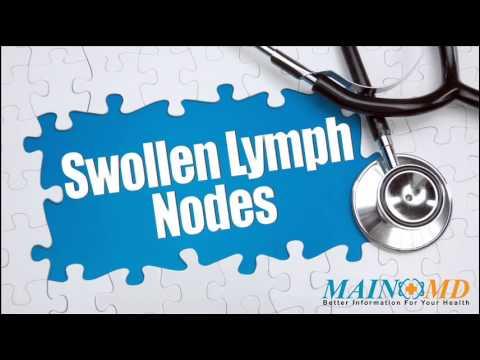 Swollen Lymph Nodes ¦ Treatment and Symptoms