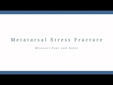 Metatarsal Stress Fracture Treatment | Missouri Foot and Ankle