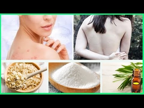 Easy Ways to Get Rid of Back Acne - V 4 YOU