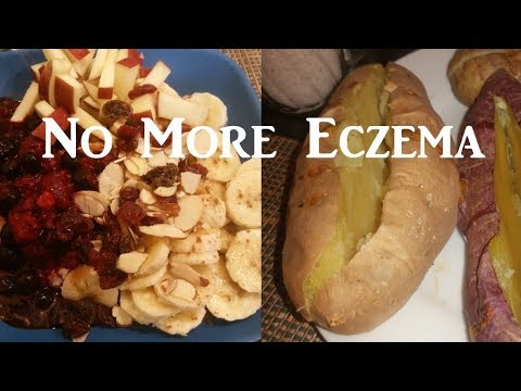 Post-Thanksgiving What I Eat in a Day // Healing and Reversing Eczema