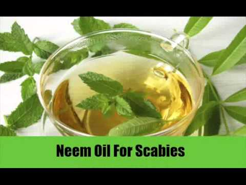 5 Ways To Cure Scabies