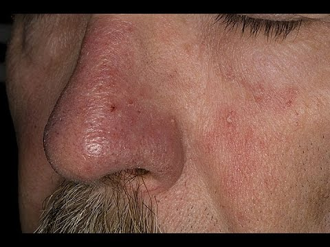 How to Treat Eczema on Face   Seborrheic Dermatitis Treatment   Face Eczema Treatment