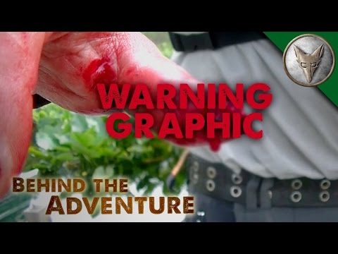 Brave Wilderness | REALLY BAD Snapping Turtle Bite - WARNING GRAPHIC!