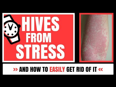 Hives From Stress - And How To Easily Get Rid Of It