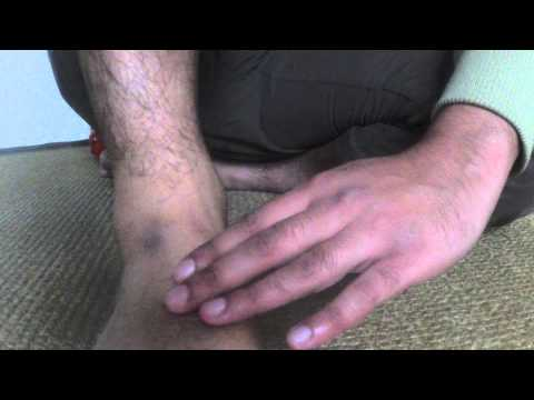 A Tip on How to Feel the Dorsalis Pedis/Foot pulse #LifeHack