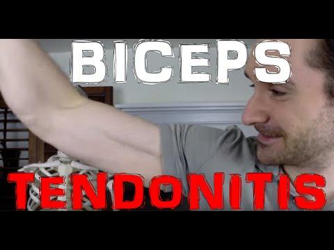 How Biceps Tendonitis Happens