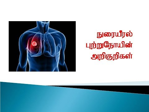 Symptoms of Lungs Cancer