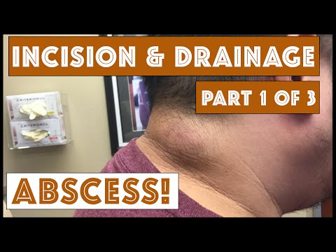 Incision & Drainage of an Infected Cyst - Part 1 of 3