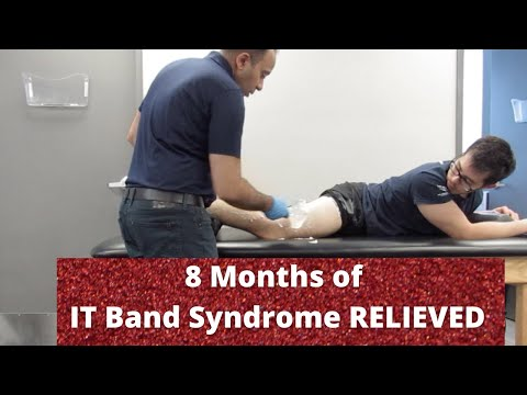 8 Months of Iliotibial Band Syndrome Pain Relieved in Minutes