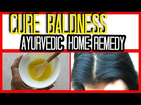 LOSING HAIR? quick home remedy | ANCIENT INDIAN SECRETS