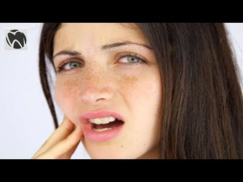 Will Dry Socket Heal On Its Own - Wisdom Teeth Pain