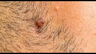 In 4 Minutes, Remove Unwanted Hair Permanently | No Shave | No Wax