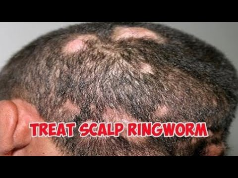 Ringworm | How to Treat Scalp Ringworm on head-Healthy Wealthy