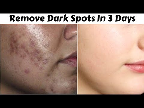 In 3 Days - Remove Dark Spots, Black Spots & Acne Scars | Get Rid Of Uneven Skin Tone