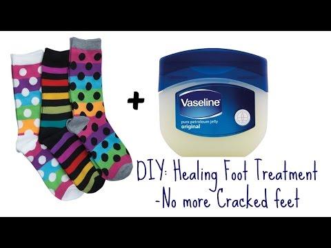 DIY: Heal Cracked Winter Feet Over Night