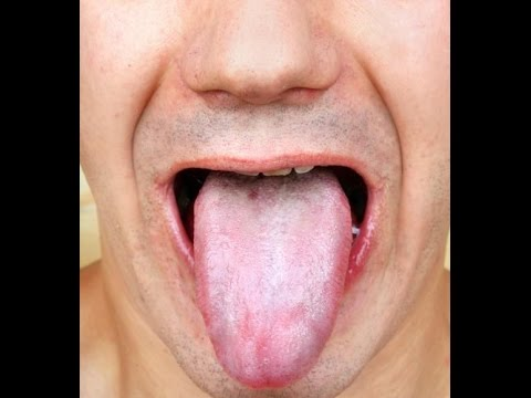 6 Easy Home Remedies to Get Rid of White Coated Tongue