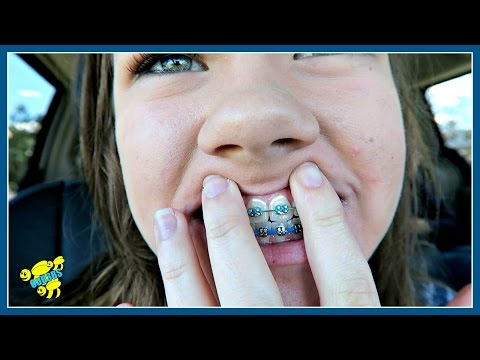 😬 WHAT'S ON MY TEETH? 😬 ~ BRACES UPDATE ~ VLOG