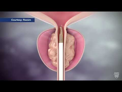 Mayo Clinic Minute: Steam treatment for enlarged prostate