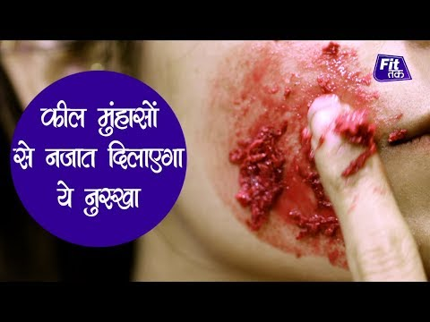 Pimples Removal On Face at Home | पिम्पल्स हटाने का देसी नुस्खा