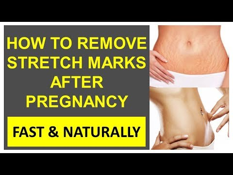 How to Remove Stretch Marks after Pregnancy Fast & Naturally