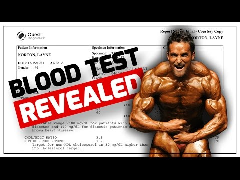 IIFYM Blood Work REVEALED (CHOLESTEROL, SUGARS, INFLAMMATION, TESTOSTERONE & MORE)