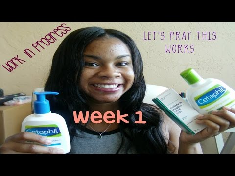Clearing Up My Acne | WEEK 1| Skin Diary