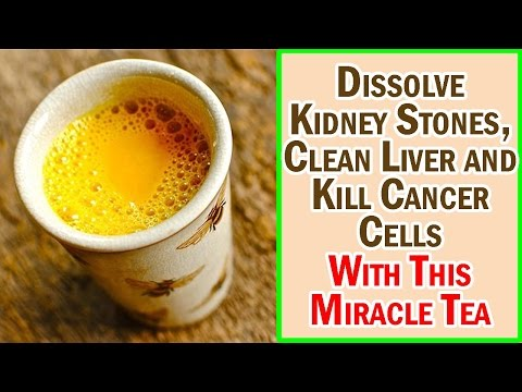 Dissolve Kidney Stones, Clean Liver and Kill Cancer Cells With This Miracle Tea