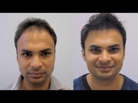 East Indian Male 3300 FUT Hair Transplant – patient testimonial