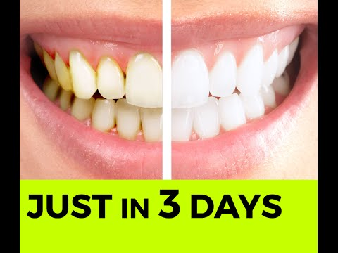 Baking Soda Tip - How To Whiten Your Teeth Naturally