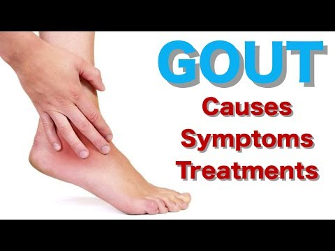 GOUT Uric Acid Gout Diet Causes, Symptoms and Treatment Health4u