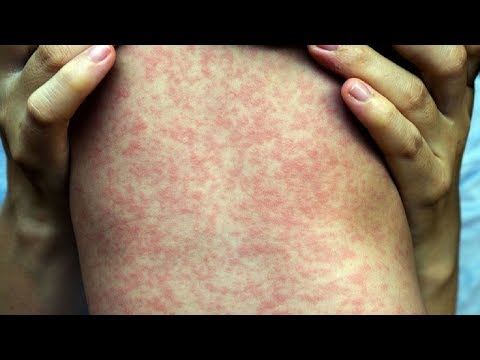 AMAZING TIPS: Cure Skin Rash - Face Rash Treatment.