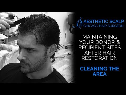 HAIR REDESIGN: Four Days After Hair Restoration Procedure - Cleaning the Area