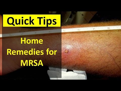 Home Remedies for MRSA